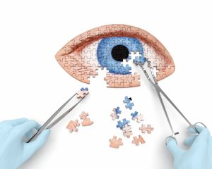 Cataract Surgery in Daytona Beach