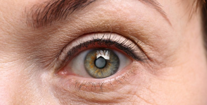cataract surgery cost in New Smyrna Beach