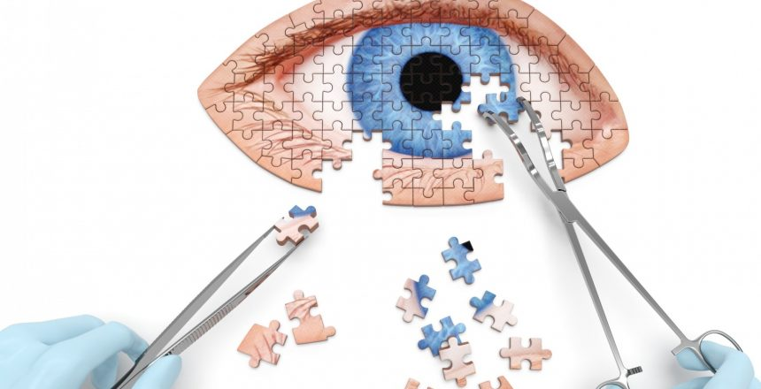 Cataract Surgery in Daytona Beach